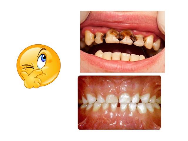 الأسنان للصف الرابع  by hanan alhashemi