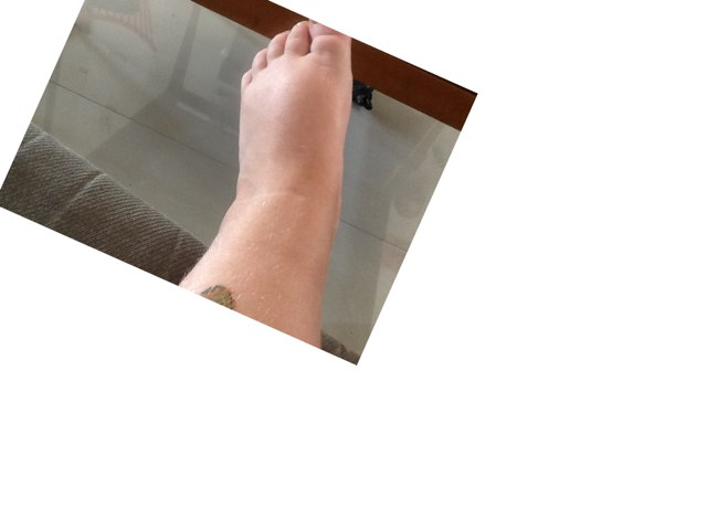 Eli's Foot Puzzle by Alex Fuchs