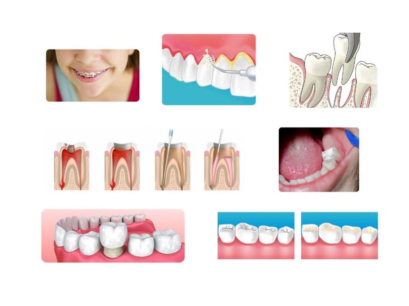 Les soins dentaires by Pamela Faudemer