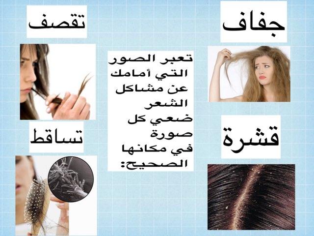 مشاكل الشعر by ام تركي الحربي